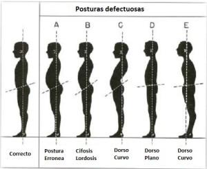 Fuente: http://kinesiologoenlinea.blogspot.com.es/p/reeducacion-postural-global.html